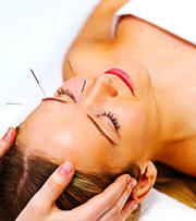 Cosmetic Acupuncture in Chicago Area